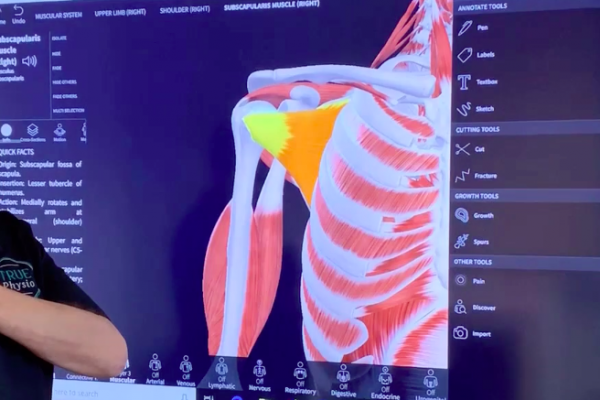 Rotator Cuff Injury Explained Video